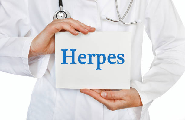 What is Herpes?