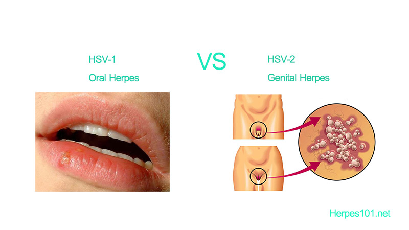 Oral hsv 2 symptoms  Herpes Signs and Symptoms  2019-05-08