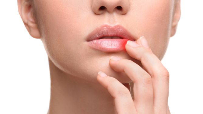 What Are the Symptoms of Herpes?